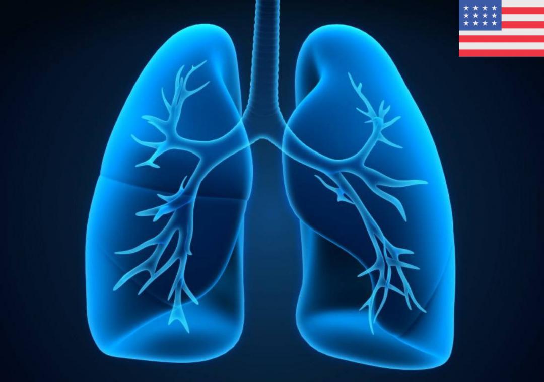 Fatores de risco associados à síndrome do desconforto respiratório agudo e morte em pacientes com doença por coronavírus 2019 Pneumonia em Wuhan, China (em inglês)